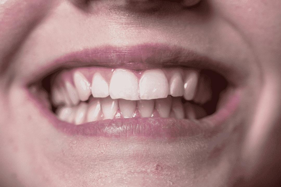 Pacient ima lep, bel nasmeh